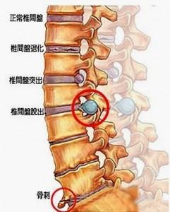 腰酸背痛,腰背痛,物理治療,疼痛點,椎間盤突出,減壓手術,固定手術,鈦合金人工椎間盤,神經外科醫生診斷