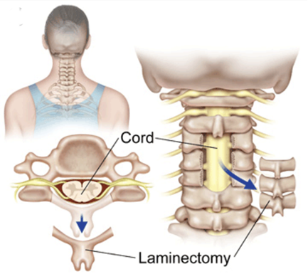 Cervical Spine Cord Laminectomy