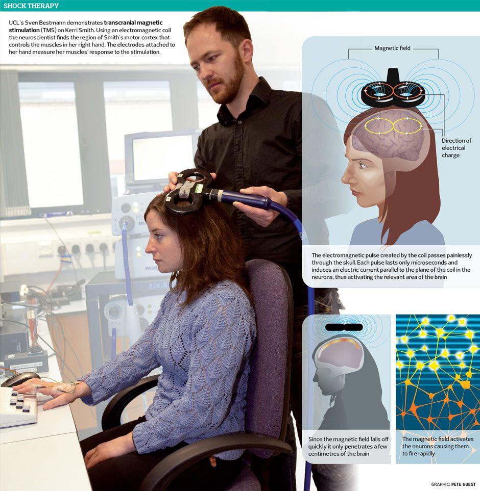 Transcranial Magnetic Stimulation TMS(腦磁激療法)